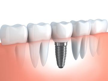 Dental Implants Fort Collins