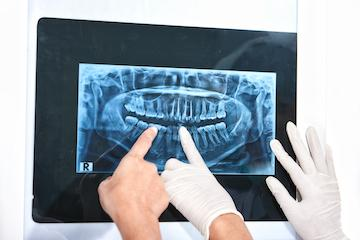 X Ray | Dentist Fort Collins CO