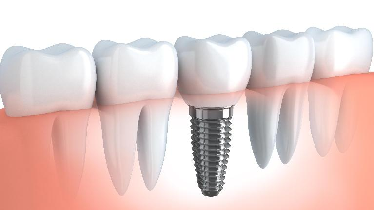 Dental Implant | Buxton Family Dental