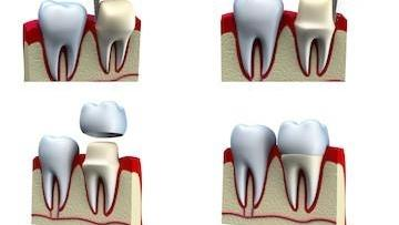 Dental Crowns Process | Buxton Family Dental