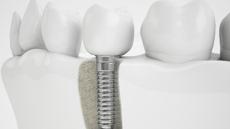 Dental Implants | Buxton Family Dental