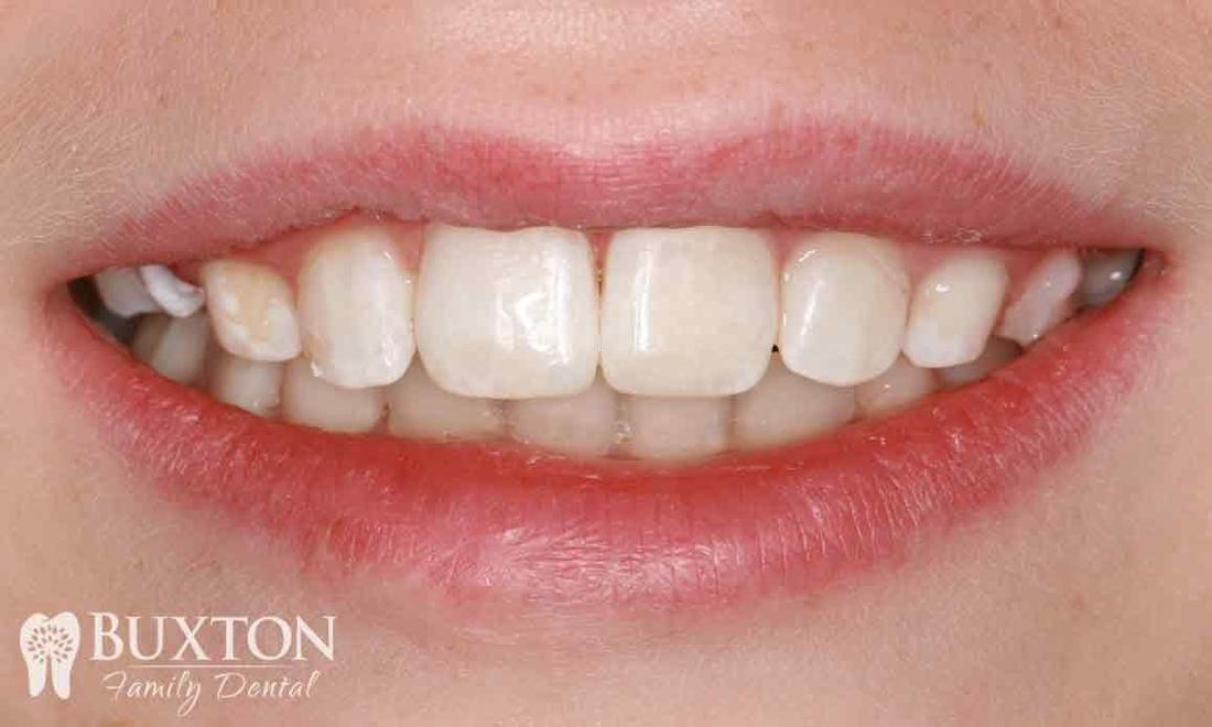 Composite Bonding Damaged Teeth
