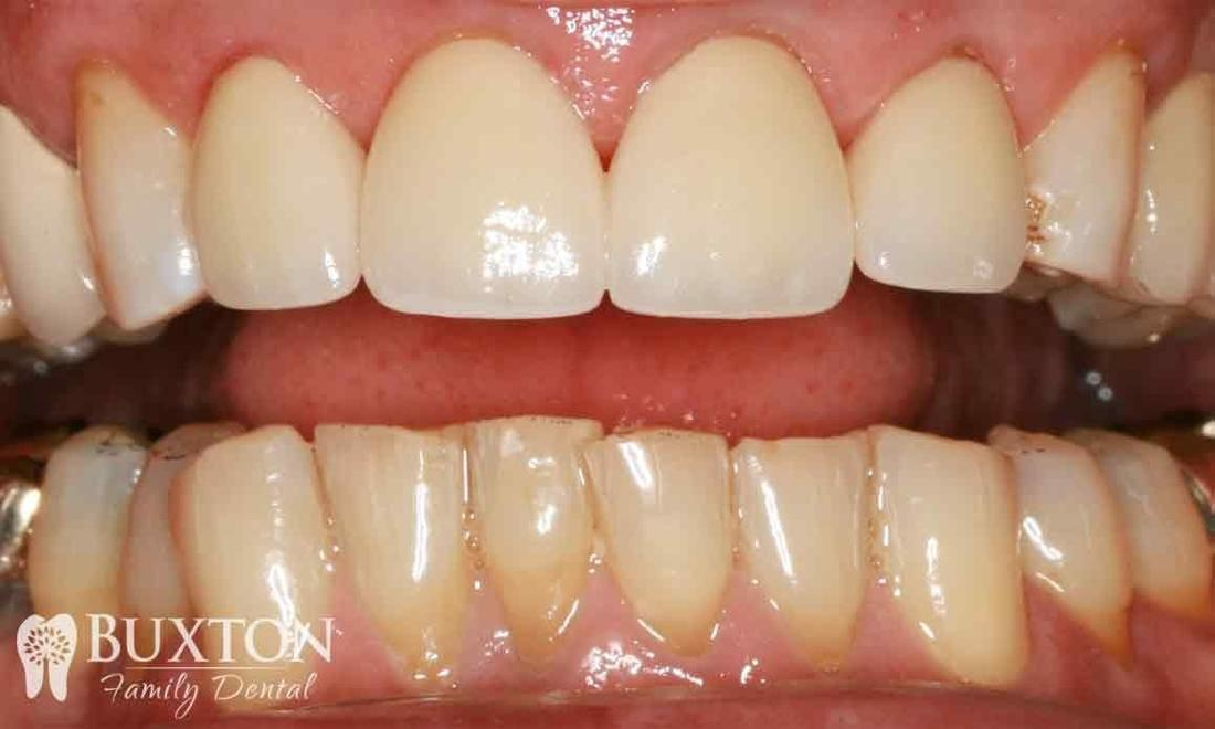 Worn Teeth Repaired with Crowns