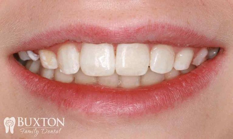 Composite-Bonding-Damaged-Teeth-After-Image
