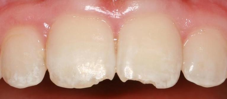 Anterior-Composite-Before-Image