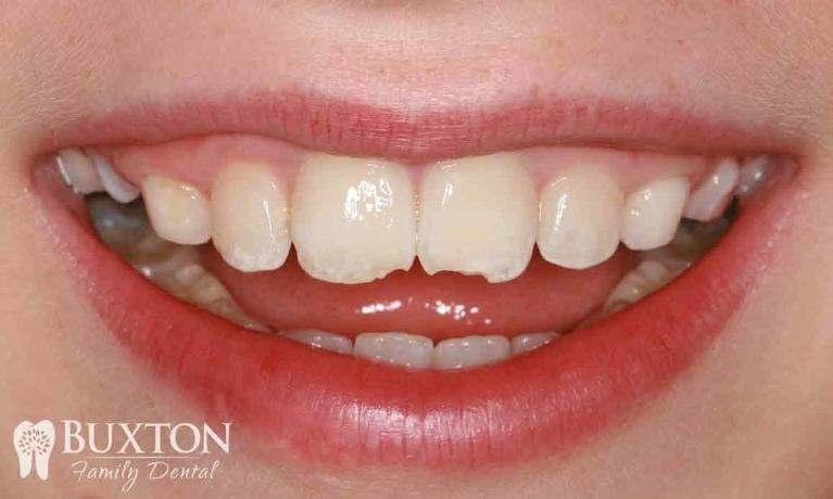 Composite-Bonding-Damaged-Teeth-Before-Image