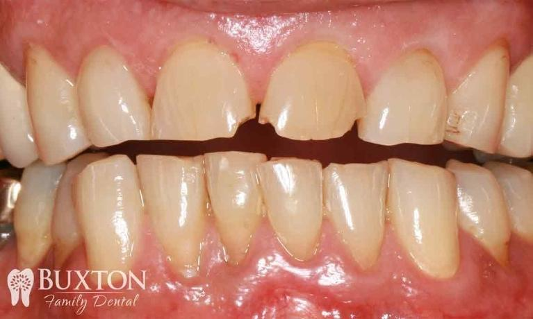 Worn-Teeth-Repaired-with-Crowns-Before-Image